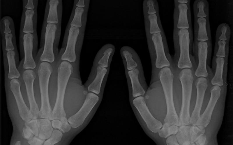 Rheumatoid Arthritis and The Paleo Diet | The Paleo Diet