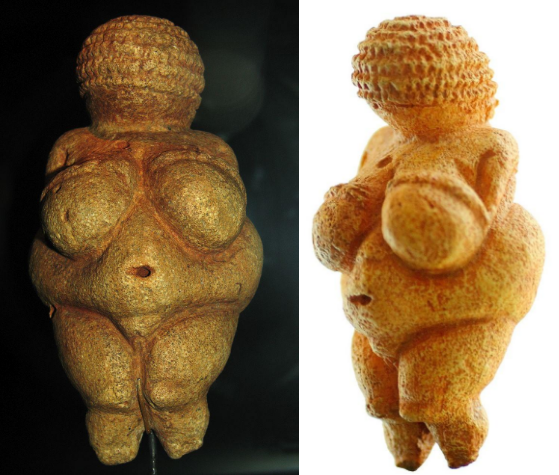 Obesity in the Paleolithic: The Odd Case of the Venus Figurines image