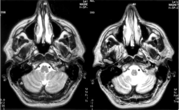 Brain MRI of a patient with gluten ataxia showing rapid onset of cerebellar atrophy over a period of 15 months before the diagnosis of gluten ataxia.