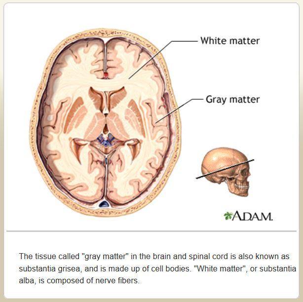 Gluten and White Matter in the Brain